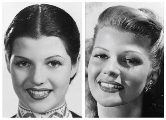Rita Hayworth - Before and After Electrolysis Hairline Shaping
